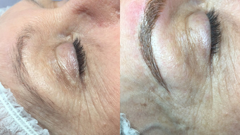 Linda Hall's eyebrows before and after